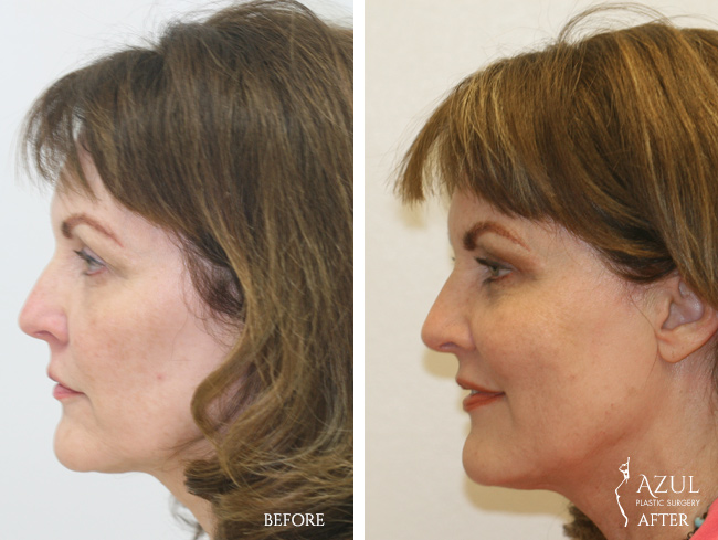 Houston Facelift plastic surgery patient #2b