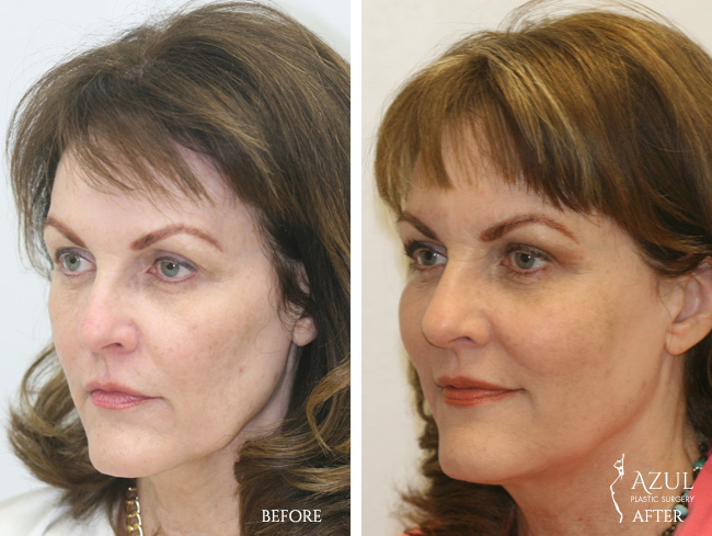 Houston Facelift plastic surgery patient #2c