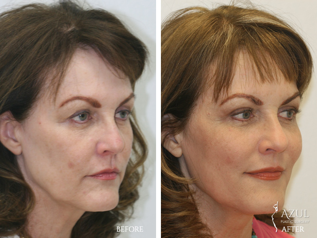 Houston Facelift plastic surgery patient #2d