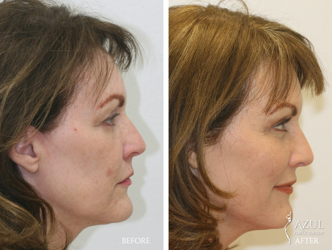 Houston Facelift plastic surgery patient #2e