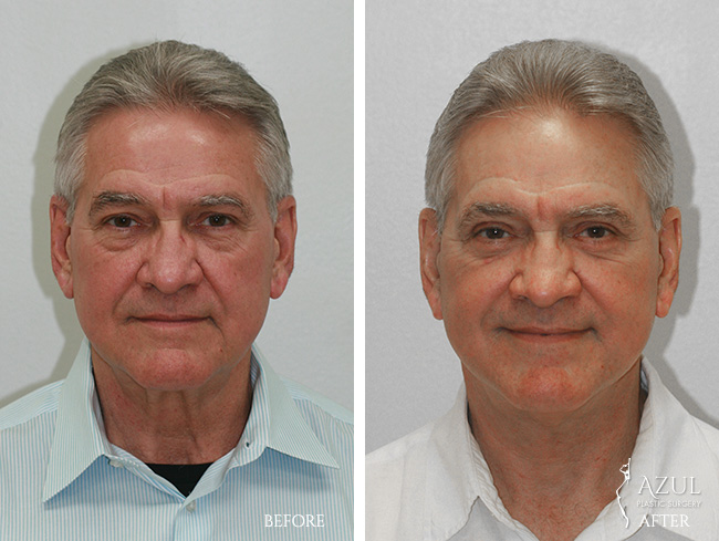 Houston Facelift plastic surgery male patient #3