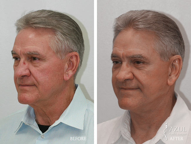 Houston Facelift plastic surgery male patient #3b