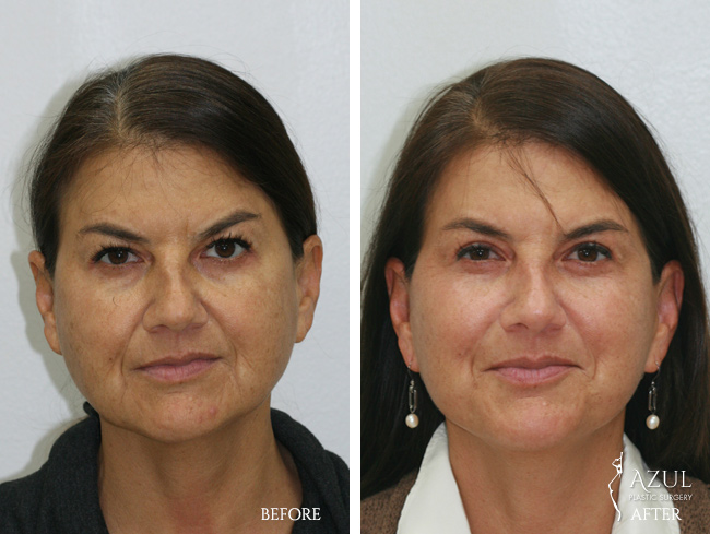 Houston Facelift plastic surgery patient #4