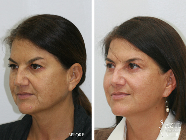 Houston Facelift plastic surgery patient #4b