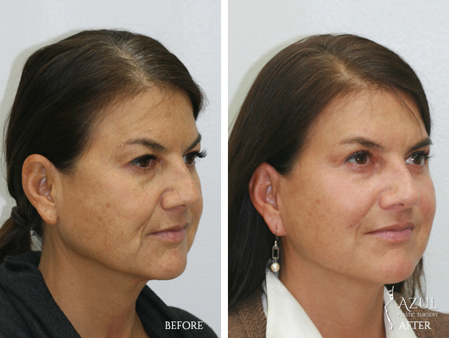 Houston Facelift plastic surgery patient #4c