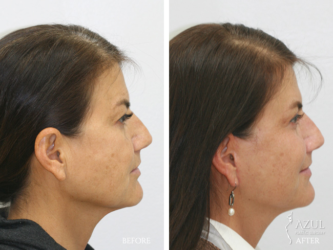 Houston Facelift plastic surgery patient #4d