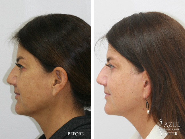 Houston Facelift plastic surgery patient #4e