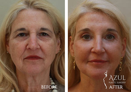 Houston Facelift plastic surgery patient #5