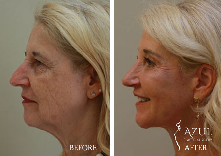 Houston Facelift plastic surgery patient #5b