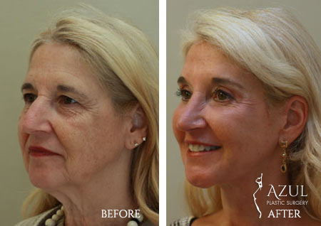 Houston Facelift plastic surgery patient #5c