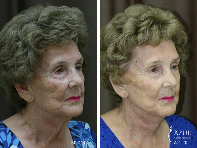 Houston Facelift plastic surgery patient #6