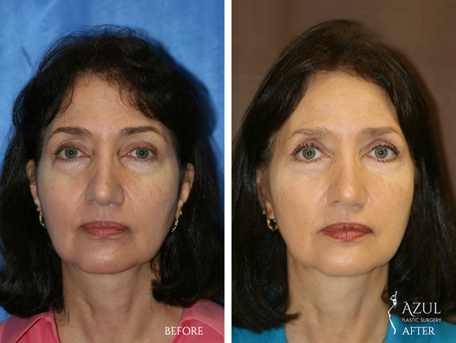 Houston Facelift plastic surgery patient #7