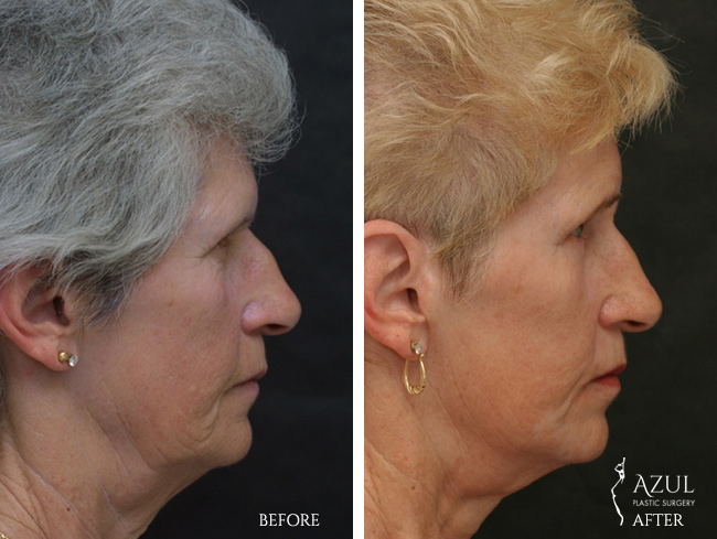 Houston Facelift plastic surgery patient #8