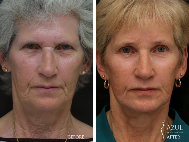 Houston Facelift plastic surgery patient #8b