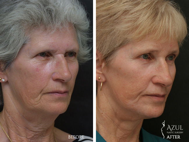 Houston Facelift plastic surgery patient #8c