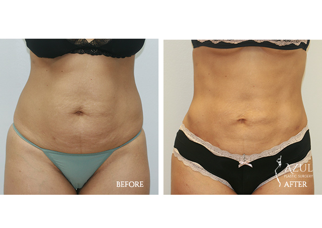 Houston Liposuction patient #2