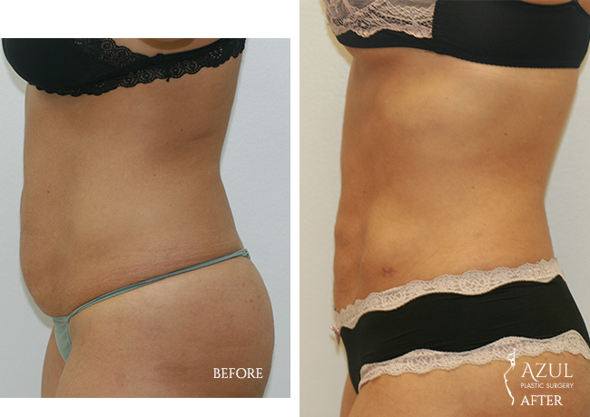 Houston Liposuction patient #3