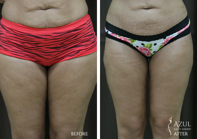 Houston Liposuction patient #4