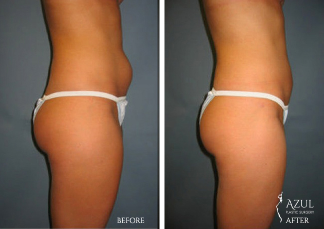 Houston Liposuction patient #5
