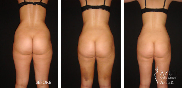 Houston Liposuction patient #7