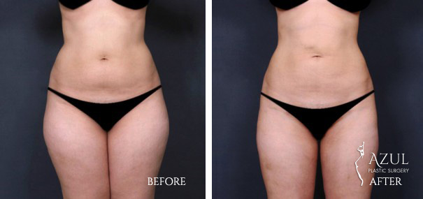 Houston Liposuction patient #8