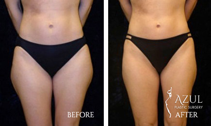 Houston Liposuction patient #9