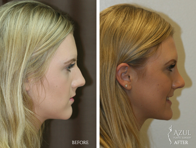 Houston Rhinoplasty patient #1c