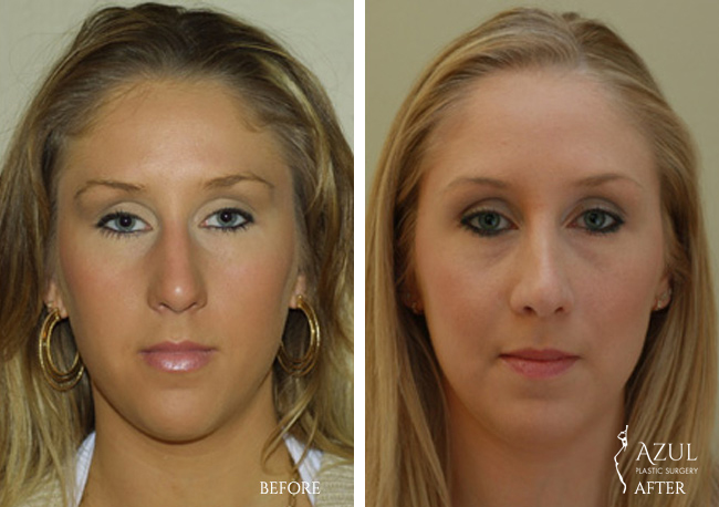 Houston Nose Reshaping patient #3a