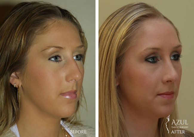 Houston Nose Reshaping patient #3b