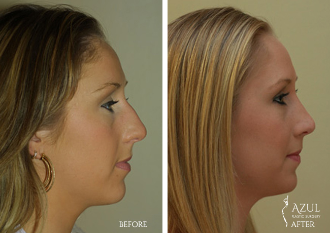 Houston Nose Reshaping patient #3c