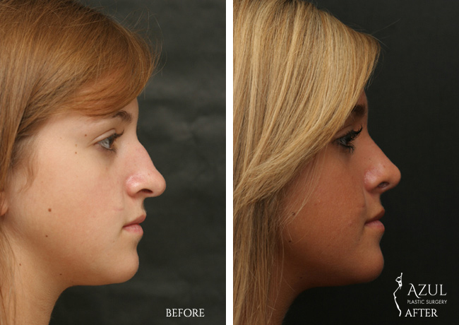 Houston Nose Job patient #4c