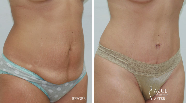 Houston Tummy Tuck patient #2d