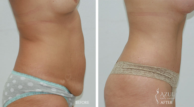 Houston Tummy Tuck patient #2e