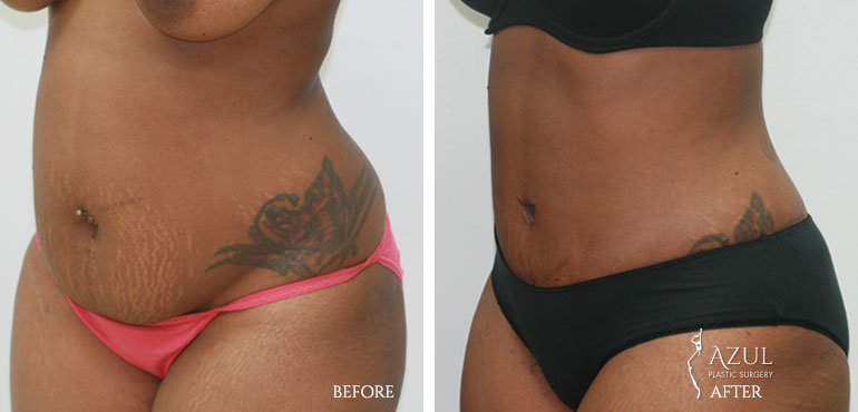 Houston Tummy Tuck patient #3b