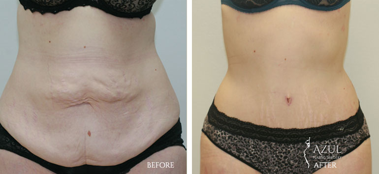 Houston Tummy Tuck patient #5a