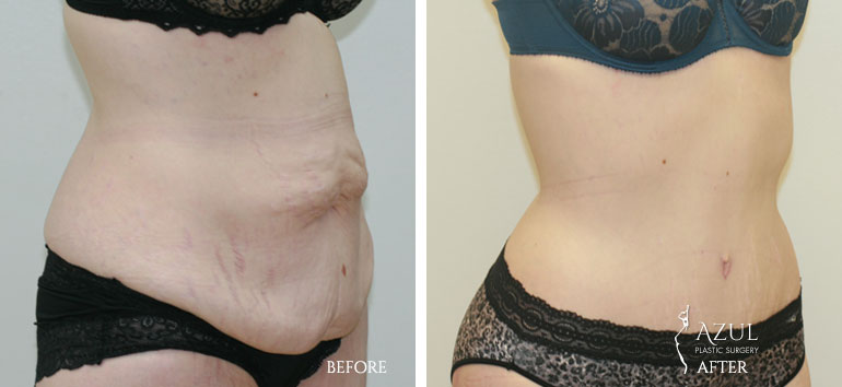 Houston Tummy Tuck patient #5b