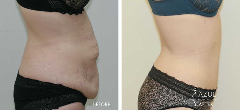Houston Tummy Tuck patient #5c