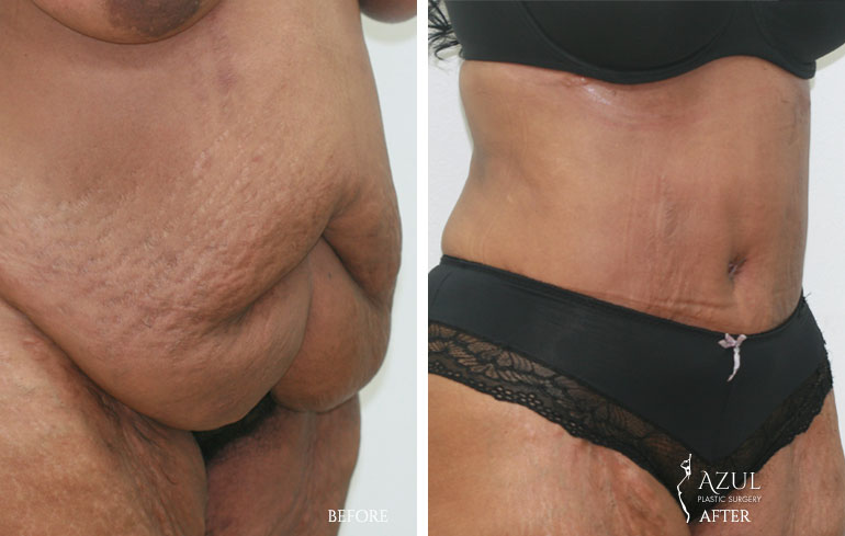 Houston Tummy Tuck patient #6a
