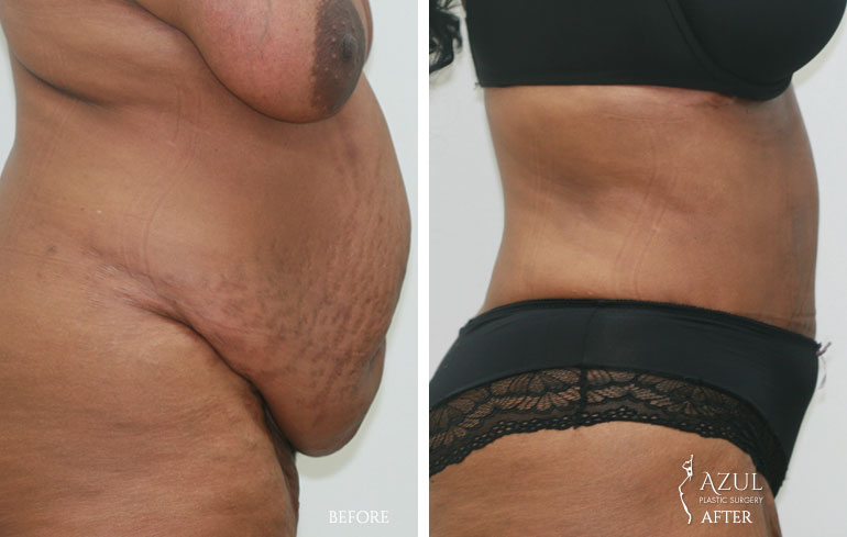 Houston Tummy Tuck patient #6b