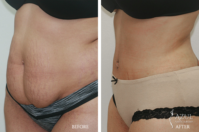 Houston Tummy Tuck patient #7a