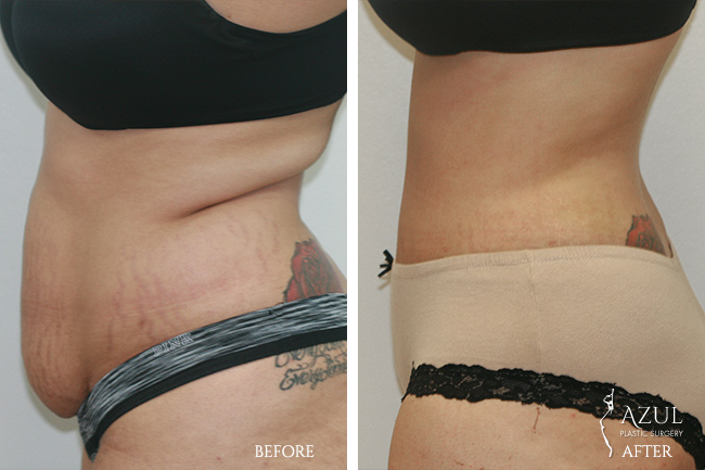 Houston Tummy Tuck patient #7b