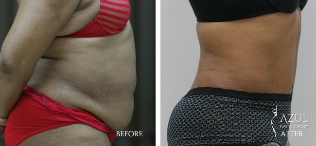 Houston Tummy Tuck patient #8a