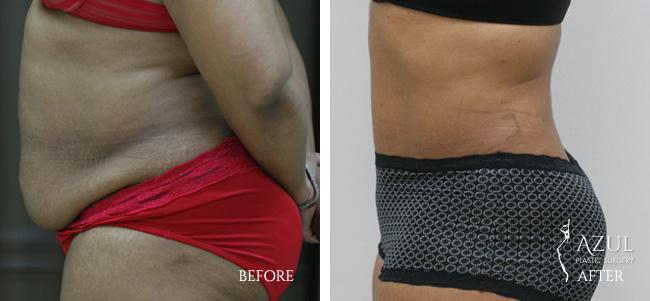 Houston Tummy Tuck patient #8b