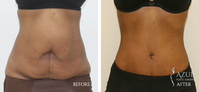 Houston Tummy Tuck patient #9a