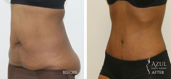 Houston Tummy Tuck patient #9b