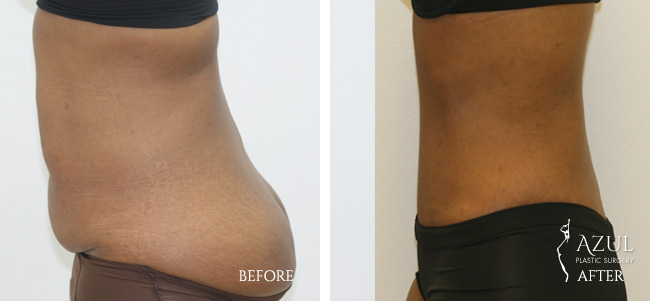 Houston Tummy Tuck patient #9c