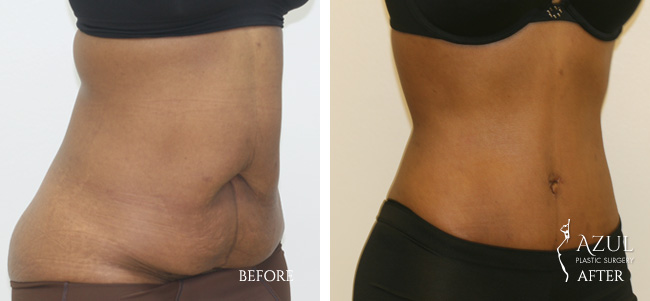 Houston Tummy Tuck patient #9d