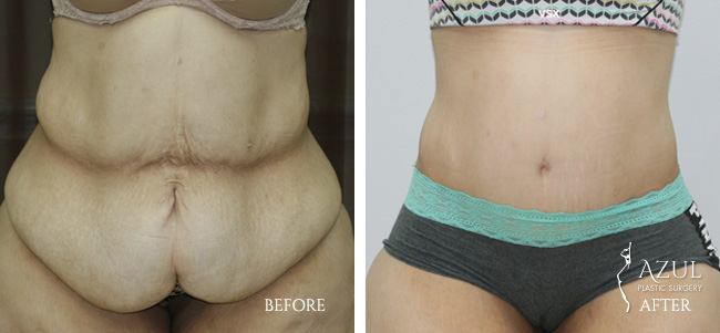 Houston Tummy Tuck patient #10b