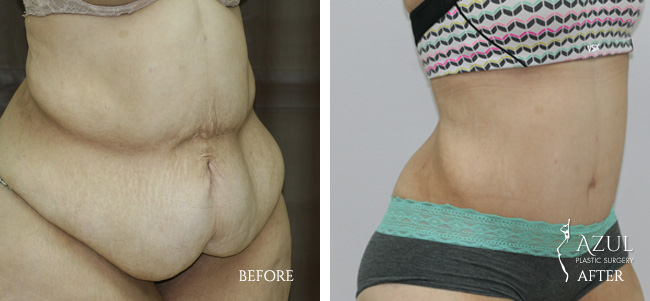 Houston Tummy Tuck patient #10c