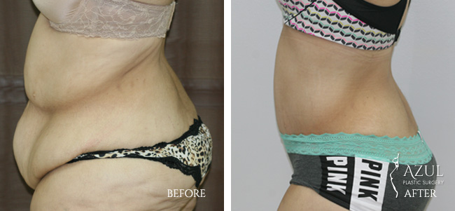 Houston Tummy Tuck patient #10d
